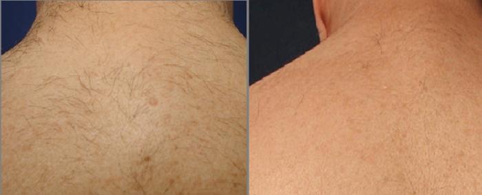 Результаты удаления волос на спине лазером