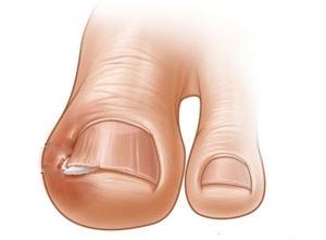 В качестве помощи самому себе вросший ноготь нужно приподнять, это снизит давление на плоть