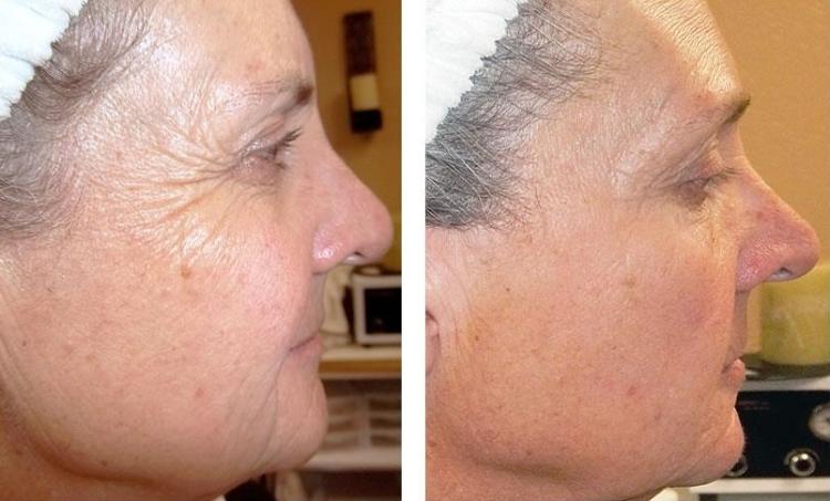 Что делает ретиноловый пилинг с постаревшей кожей