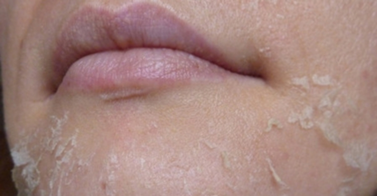 аллергия на лице на крем лечение
