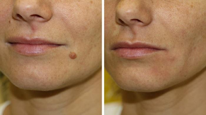Как происходит лечение кожных покровов с помощью криотерапии