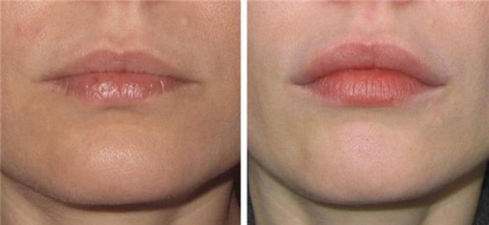 Коррекция и поднятие уголков губ гиалуроновой кислотой