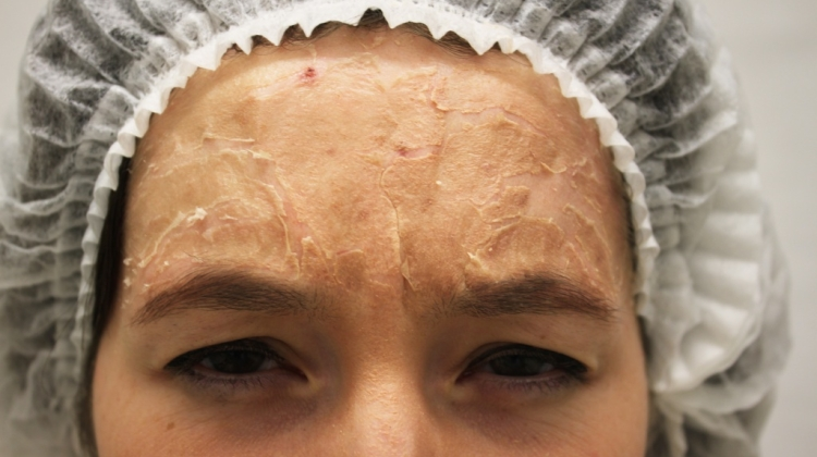 Чем почистить лицо дома от черных точек