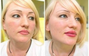 Отзывы женщин, увеличивших губы гиалуроновой кислотой