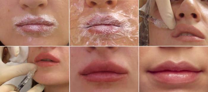 Подготовка к гиалуроновому увеличению губ и проведение процедуры