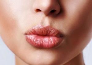 Преимущества и недостатки гиалуроновой коррекции губ