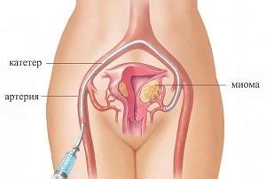 Процедура эмболизации маточных артерий как альтернативный способ лечения миомы