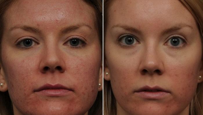 Результат после проведения косметической процедуры локальной криотерапии