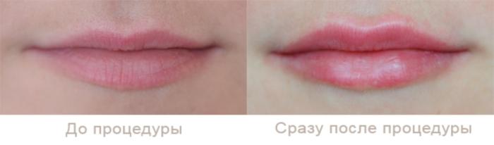 Результаты введения в губы гиалуроновой кислоты