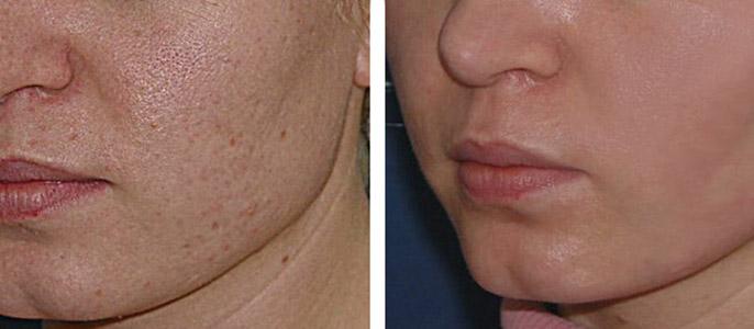 Фото с результатами до и после проведения чистки лица у косметолога