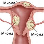 Миома матки и особенности этого заболевания