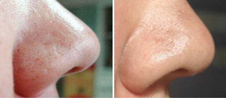 Чистка лица ультразвуком - каких результатов ожидать после проведения
