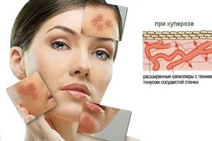 Факторы появления купероза на лице