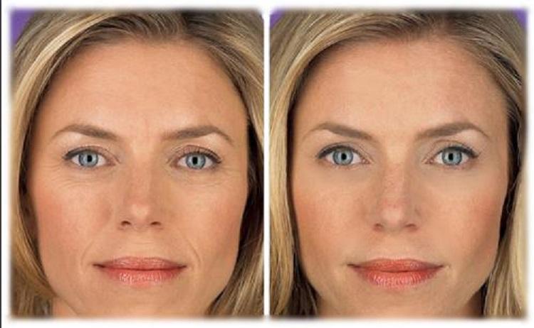 Фракционное лазерное омоложение кожи лица - эффект и результаты метода