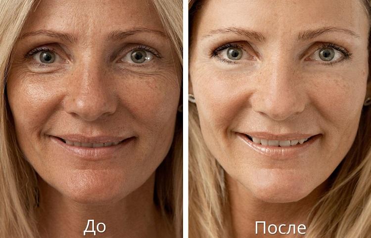 Лазерная биоревитализация - результаты после процедуры омоложения кожи лица