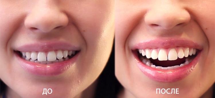 Насколько эффективна процедура лазерного отбеливания зубов