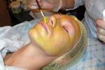 После желтого пилинга происходит активное шелушение кожи