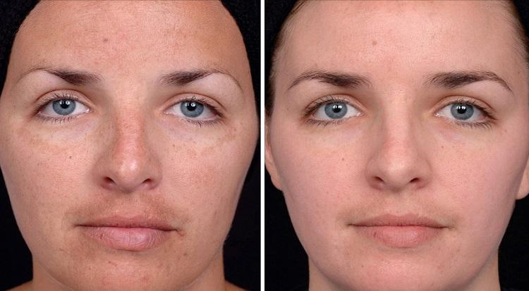 Результаты и эффект после ультразвукового пилинга лица