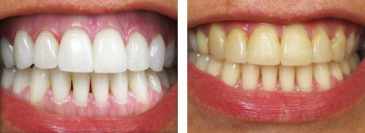 Результаты пациентов после процедуры отбеливания зубов лазером