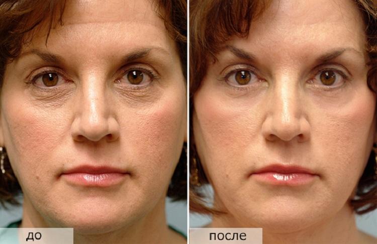 Результаты после процедуры лазерного омоложения лица в салоне