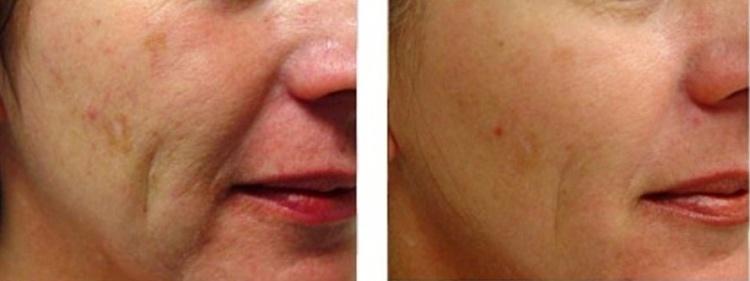 Фотоомоложение помогает разгладить морщинки на лице