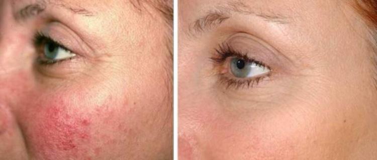 Фотоомоложение способствует устранению воспалений на лице