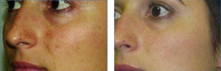 Как выглядит кожа после мезотерапии Дермахилом SR