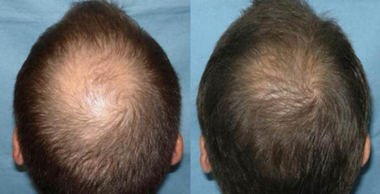 Мезотерапия для волос с ппрепаратами Дермахил