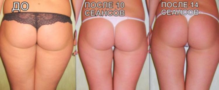 После процедуры LPG-массажа кожа становится более упругой и подтянутой