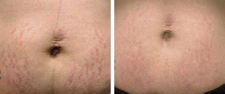 Фото до и после применения средств против избавления растяжек на животе после родов