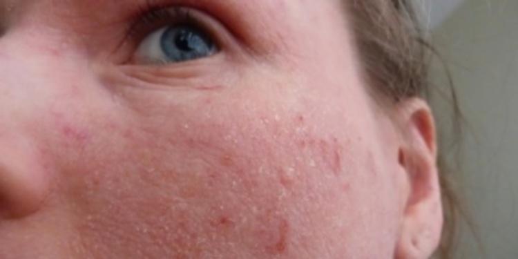 Сухая и обезвоженная кожа лица