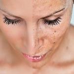 Как избавиться от шрамов после прыщей - ответ на вопрос
