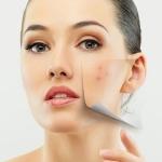 Как и чем делают чистку лица у косметолога?
