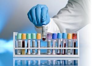 Таблица анализа крови биохимия