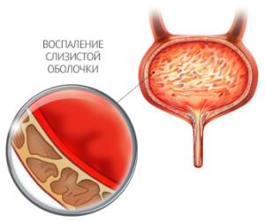 Причины воспаления мочевого пузыря у женщин
