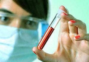 Что делать и к какому врачу обратится, если у женщины повышены лимфоциты в крови
