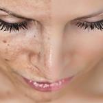 Как отбелить кожу от пигментных пятен: советы и рекомендации