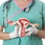 Профилактика рака яичников: советы и рекомендации