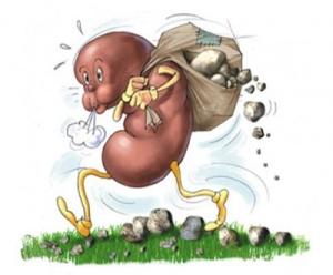 Камни в почках у женщин: симптомы и причины