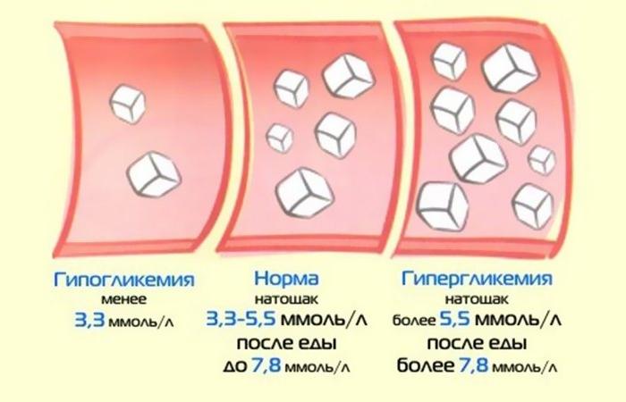 Повышенный сахар в крови у женщин: какова норма и симптомы?