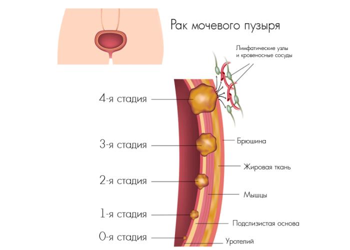 Симптомы и стадии рака мочевого пузыря у женщин