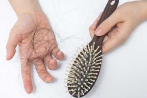 Выпадение волос у женщин: какова норма?