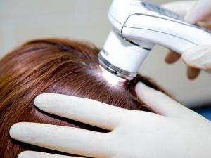 Дневная норма выпадения волос у женщин: когда нужно обращаться к врачу?