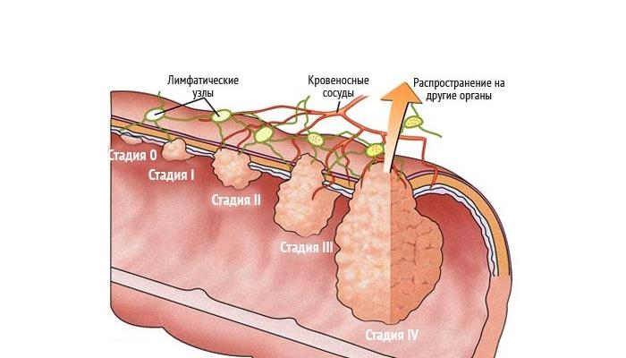 Рак кишечника признаки и симптомы у женщин