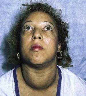 Гипертиреоз у женщин: основные причины, симптомы и лечение