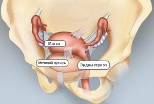Признаки эндометриоза у женщин при хронической форме заболевания