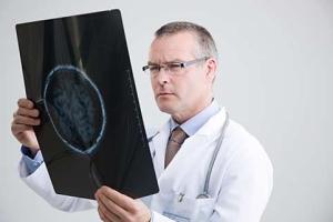 Аденома гипофиза у женщин: симптомы, лечение, прогноз заболевания, виды опухолей