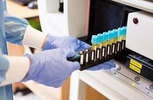 Как сдавать анализ на ВПЧ у женщин - несколько способов для определения