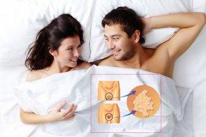 Заражение вирусом папилломы человека у женщин в гинекологии