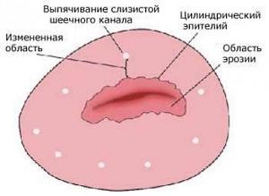 Эрозия шейки матки: код по мкб 10, стадии развития изъязвлений